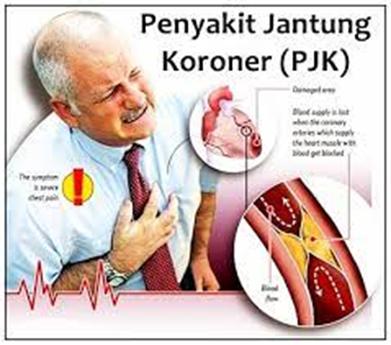 JantungKoroner1
